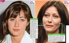 Shannen Doherty Plastic Surgery plastic surgery clinics in hyderabad - http://www.celebsurgerybefore.com/shannen-doherty-plastic-surgery-celebs-with-ugly-hands/
