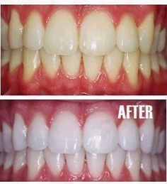 -Put a tiny bit of toothpaste into a small cup, - mix in one tsp baking soda plus one tsp of hydrogen peroxide, and 1/2 a tsp water. Thoroughly mix then brush your teeth for two minutes. Remember to do it once a week until you have reached the results you want. Once your teeth are good and white, limit yourself to using the whitening treatment once every month or two.
