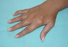 """Artrite delle articolazioni metacarpofalangee (1a, 2a, e 3a della mano destra) e deformità articolare del 5° dito della mano destra (cosiddetta a """"collo di cigno"""") in paziente affetta da artrite reumatoide"""