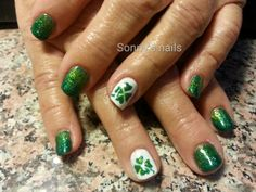 St. Patrick's Day green nails by Sonny's nails | Nail Gallery by NAILPRO