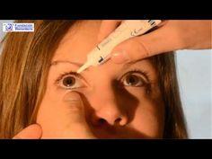 Desde la Fundación Rementería hemos grabado un video en el que indicamos paso a paso como ponerse correctamente una pomada en los ojos. + info: www.fundacionrementeria.es