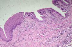 Muestra histológica de un tejido epitelial que presenta metaplasia. Microscopio óptico.
