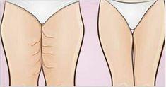 As mulheres adoram a ideia de ter pernas bem torneadas. Infelizmente, muitas seguem uma dieta balanceada, fazem exercícios regularmente, mas não conseguem