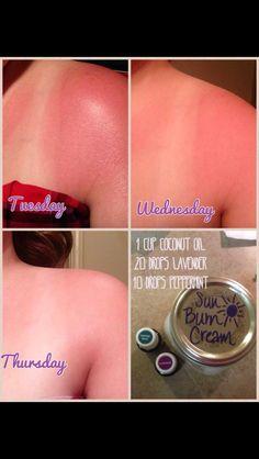 Sunburn cream