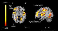 """cerveau d'un adolescent ayant subit un traumatisme important laisse apparaître une hypersensibilité au stress. Les zones en surbrillance sont importantes dans la """"régulation émotionnelle""""."""