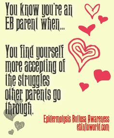 You know you're an EB parent when... you find yourself more accepting of the struggles other parents go through. #EpidermolysisBullosa #EBawareness #stopEb #EBaware http://ebinfoworld.com          #flutter4EB #butterflychildren