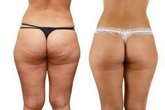 Every woman hates to have cellulite! Those hideous looking fat deposits attack those points that are clearly visible ?thighs, hips, and lower abs. Wellness Fitness, Fitness Tips, Fitness Motivation, Health Fitness, Health Exercise, Fitness Quotes, Keep Fit, Stay Fit, Combattre La Cellulite