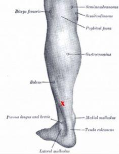 Description of soleus trigger points for heel pain