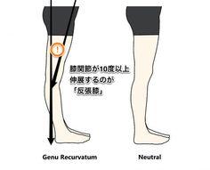 ふくらはぎが太くなる人のもう一つの理由とは? 前回もご参照ください。 「股関節の伸展がないので 足を底屈させるふくらはぎの筋肉を 使ってばかりで太くなる」 もうひとつの理由は・・・ ②反張膝(はんちょうひざ)あるいは膝過伸展ではありませんか? 反張膝や膝過伸展・・・聞いたことがありますか? 名前がわからなくても自分の脚は、このタイプだなあと感じている人は多いです。 定義としては 真上からまっすぐ線を引いた場合(矢状面)膝関節が10度 Nice Body, Christian Louboutin, Health Fitness, Exercise, Beauty, Exercises, Ejercicio, Excercise, Work Outs