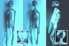 "CLAIMS that five 1,700 year-old mummies look more reptilian than human have been causing a stir with conspiracy theorists. New images of the ""alien mummies"" were unveiled during a press…"