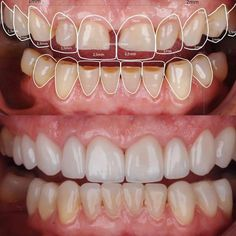 White, equally shaped teeth enhance the beauty of your face. Cosmetic dentistry uses lots of treatment alternatives for individuals who want to enhance their teeth. The techniques can be as simple as teeth lightening or as complex as bracing and bridging. Teeth Health, Healthy Teeth, Dental Health, Oral Health, Healthy Life, Protésico Dental, Dental Surgery, Dental Implants, Dental Hygienist