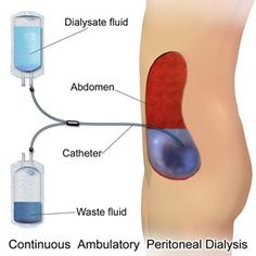 types of dialysis: peritoneal dialysis