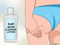 3 Ways to Get Rid of Acne on the Buttocks - wikiHow