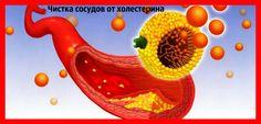 как почистить сосуды от холестерина медикаментами