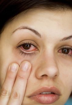 People with allergies also can develop red, swollen, and itchy eyes when exposed to their allergic triggers.