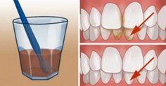 Το ξέρατε πως η στοματική υγιεινή επηρεάζει συνολικά την υγεία ενός ατόμου; Σύμφωνα με μελέτες, χωρίς την σωστή στοματική υγιεινή δεν γίνεται το σώμα να κα Dental Hygiene, Dental Care, Acv And Honey, Tartar Removal, Reverse Cavities, Plaque Removal, Teeth Cleaning, Cleaning Hacks, Home Remedies