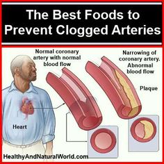 The best foods to prevent clogged arteries - and lower blood pressure.