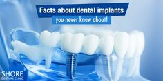 Dental implants are the best solution for missing tooth along with dentures. Know how dental implants can improve your life even without having your own teeth. Teeth Implants, Dental Implants, Molar Tooth, Implant Dentistry, Psychological Effects, Dental Procedures, Emotional Stress, Good Smile, Smile Because