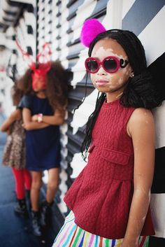 April Star: 10-Year-Old Model With Vitiligo Is Redefining Beauty