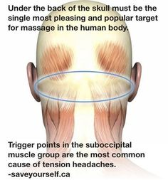 Massage for headaches~right below the occipital.  Family Care Chiropractic 972.782.7707 972.771.9448 www.chiropracticrockwall.com #migrainerelief #Massages