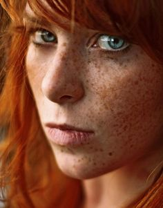 Hot redheads with freckles all