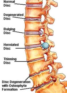 Degenerative Disc Disease - In my lower back and neck