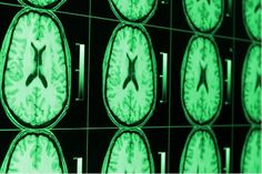 Study Finds #Cannabinoids May Treat Newborn Brain Injury Caused by Germinal Matrix Hemorrhage #MedicalMarijuana #LegalMarijuana #Cannabis