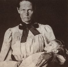 A Boer woman with her dead child, the last of her children to die, photographed by Emily Hobhouse. An English activist, Emily spent six months in South Africa from January to June 1901 visiting Bloemfontein and six other concentration camps.