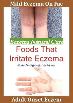 Eczema On Scalp Pompholyx Eczema Remedies,eczema dermatitis treatment eczema blisters on hands pictures what causes eczema rash natural home remedies for eczema emuaid for eczema.Eczema Cure Home Remedy,weeping eczema pictures - polyester and eczema. Best Eczema Treatment, Scalp Psoriasis Treatment, Psoriasis Remedies, Dry Skin Remedies, Homeopathic Remedies, Home Remedies