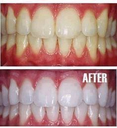 How to make your teeth Snow white :)  -Put a tiny bit of toothpaste into a small cup, mix in one teaspoon baking soda plus one teaspoon of hydrogen peroxide, and half a teaspoon water. Thoroughly mix then brush your teeth for two minutes. Remember to do it once a week until you have reached the results you want. Once your teeth are good and white, limit yourself to using the whitening treatment once every month or two.  via:healthdigest  ❥ Share to save on your timeline ❥ or Tag yourself to…