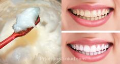 Better Than The Dentist: 4 Steps To Whiten Yellow Teeth And Remove Plaque And Tartar Buildup - Fine Cooking Beauty Secrets, Beauty Hacks, Teeth Whitening Methods, Mouthwash, Natural Cures, Home Remedies, Body Care, Healthy Life, Healthy Teeth