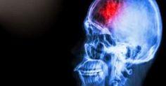«Μίνι» εγκεφαλικό: Αυτά είναι τα συμπτώματα