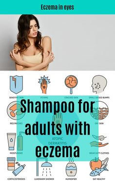 Best Ointment For Eczema. Itchy skin and eczema medication. On the list of various chronic skin disorders, eczema is among the most frequent. Best Eczema Treatment, Eczema Causes, Cracked Skin, Dry Scalp, Skin Rash, Sensitive Skin, Shampoo, Blog, People
