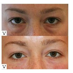 Dark circles under eyes can be corrected with Restylane, it's of the the few places in the face where hyaluronic acid based filler lasts a full year and sometimes longer. #boston #rhinoplasty #nosejob #alternative #injection #expert #newton #asymmetry #correction #reconstruction #hiv #lips #eyes #beauty #taste #youth #young #proportion #selfesteem #juvederm #belotero #merz #galderma #allergan #botox #sculptra #chin #augmentation #jaw #reduction #face #slimming #visagesculpture #mashabanar