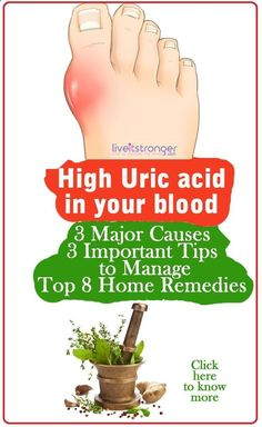 Arthritis Remedies Hands Natural Cures How to reduce high uric acid in your body naturally. #hyperuricemia causes gout a painful form of arthritis. Foods to avoid in gout and home remedies for high uric acid. Arthritis Remedies Hands Natural Cures #arthritisfoodstoavoid