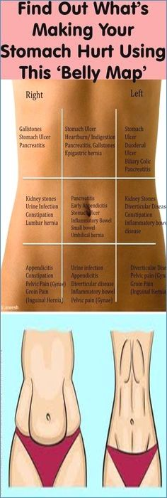 Find Out What's Making Your Stomach Hurt Using This 'Belly Map' - Home Health