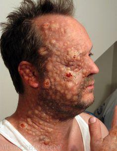 Makeup Effects Tutorial - Prosthetic Makeup Basics: Gelatin Facial ...