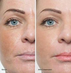 Microneedling education is important to create transformative skin results. Training will treat acne scars, wrinkles, pigmentation on all skin types Acne Scar Removal Treatment, Facial Treatment, Anti Aging Treatments, Skin Treatments, Natural Treatments, Skin Needling, Types Of Acne, Derma Roller, Beauty Box