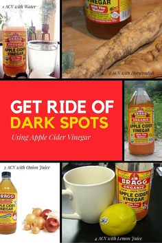 Get Rid of Dark Spots using Apple Cider Vinegar