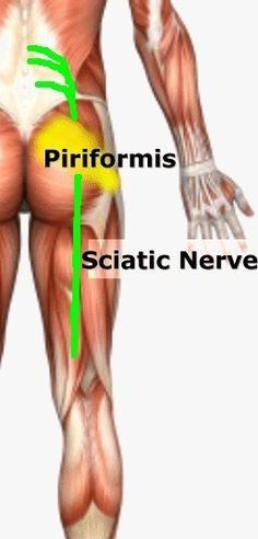1. What is Sciatica? | Searching for a Cure for Lower Back Pain or Sciatica? Sciatica is term to describe pain that can include any part of your lower extremity from your buttocks all the way down to your toes. It occurs when your sciatic nerve, a very la