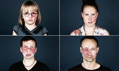 Copenhagen-based Linda Hansen published a book called Naevus Flammeus. Neevus flammeus is a birth defect that presents as a port-wine colored birthmark, usually on a person's face or neck.