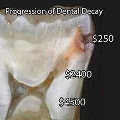 Dentistry gets more expensive if you ignore your dental problemsYou can find Dental humor and more on our website.Dentistry gets more expensive if you ignore your de. Humor Dental, Dental Assistant Humor, Dental Hygiene School, Dental Life, Dental Hygienist, Dental Fun Facts, Smoothie Mixer, Dental Anatomy, Dental Posters
