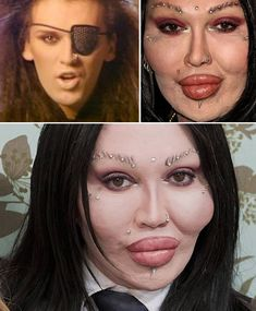 Pete Burns, singer for the pop band Dead or Alive, has had several cosmetic procedures on his face and sued a Harley Street surgeon for an estimated million over a botched attempt to remove lip implants Botched Plastic Surgery, Bad Plastic Surgeries, Plastic Surgery Gone Wrong, Celebrity Plastic Surgery, Lip Implants, Fake Lips, Surgery Doctor, Pete Burns, Kylie Jenner Lips