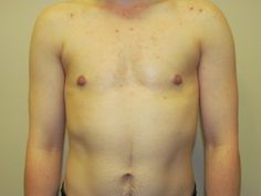 View before and after photos of FTM top surgery (double incision) performed by Dr. Curtis Crane.