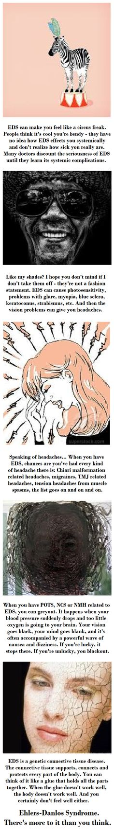 EDS / Ehlers-Danlos Syndrome: There's more to it than you think.