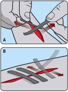 Closing a Wound With Duct Tape - nice!