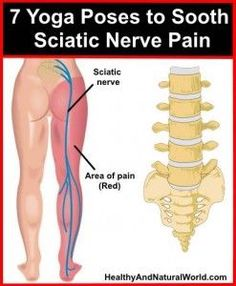 7 Yoga Poses to Sooth Sciatic Nerve Pain, be sure to exercise with care.: 7 Yoga Poses to Sooth Sciatic Nerve Pain, be sure to exercise with care. Fitness Workouts, Yoga Fitness, Health Fitness, Fitness Hacks, Sciatica Stretches, Sciatica Pain Relief, Sciatic Pain, Scoliosis Exercises, Hip Stretching Exercises