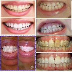ToothpasteBoss - Try the best whitening toothpaste, get great results! Money Back Guaranty