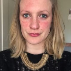 What It's Really like Living with Rosacea | Honesty For Your Skin