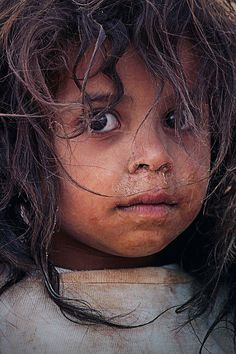 a Syrian refugee girl DEAR LORD please help this little girl over come many challanges and help her survive